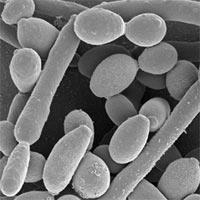 Post image for Kandida (Candida albicans) – lečenje prirodnim sredstvima
