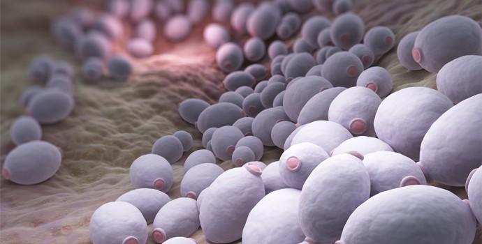 Kandida - lecenje prirodnim sredstvima